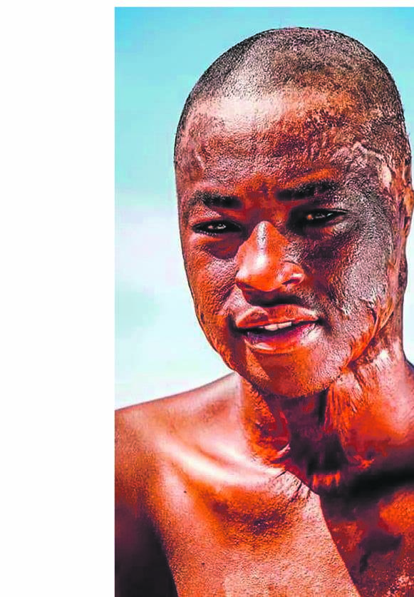 'I was burnt alive for being the first black rugby player at our school'